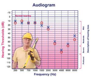 problem audiogram